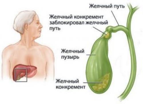 Боль под правой грудиной у женщин. Причины и симптоматика
