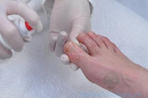 Средства от грибка ногтей на ногах запущенный. Лечение