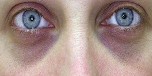 Темные круги под глазами почки. Взаимосвязь между почками и синяками под глазами