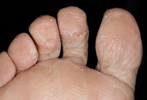 Кожа на пальцах ног отслаивается. Почему слезает кожа с пальцев?