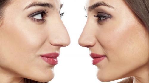 Как визуально уменьшить нос с горбинкой. Как уменьшить нос с помощью макияжа техникой контурирования
