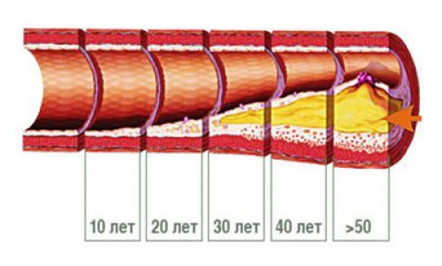 Как снизить уровень холестерина в крови. Как понизить уровень холестерина в крови?