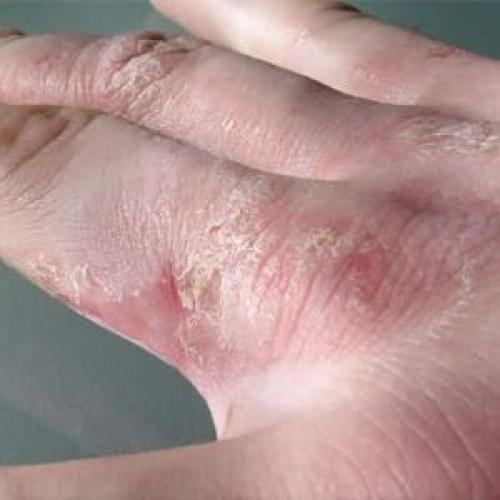 Шелушение кожи на руках. Причины