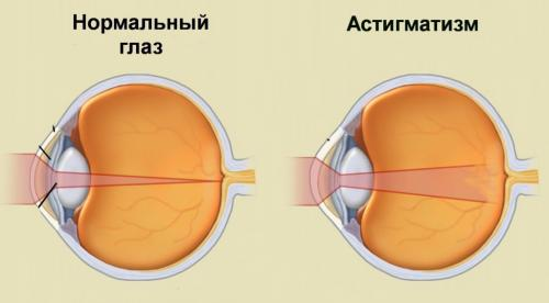Гимнастика для глаз. Гимнастика при близорукости, дальнозоркости и астигматизме