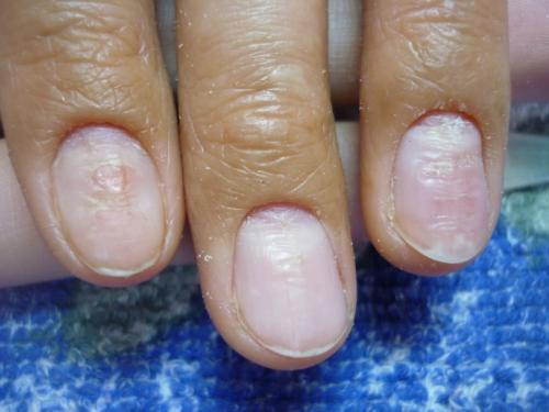 Грибок ногтей, как определить на руках. Симптомы грибка ногтей на руках