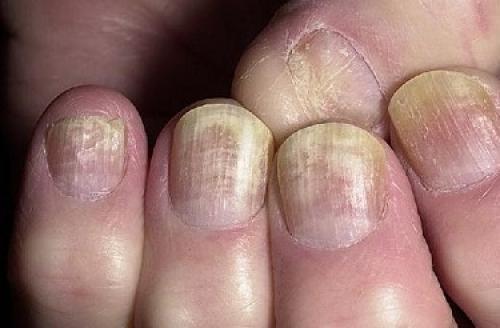 Препараты для лечения онихомикоза. Что такое онихомикоз ногтей и как его лечить?