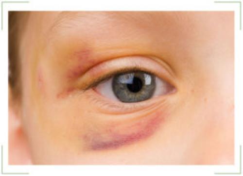 Как быстро убрать синяк и отек под глазом. Как быстро убрать синяки?
