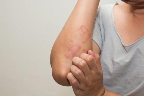 Препараты снимающие зуд кожи. Что такое зуд, его признаки