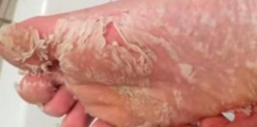 Почему облазит кожа на ступнях у взрослого. Почему облазит кожа на стопах ног