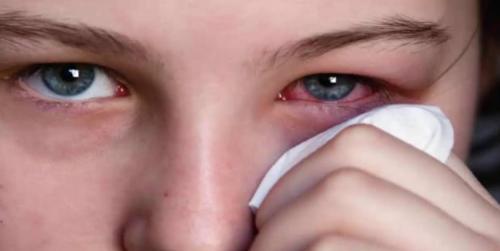 Аллергия на полынь лечение. Симптомы заболевания