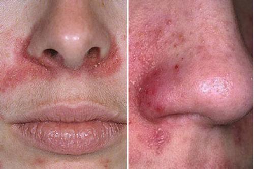 Покраснение на лице возле носа. Покраснение и шелушение вокруг носа: какие факторы провоцируют симптом, и как от него избавиться?
