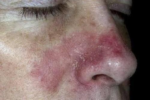 Раздражение на лице покраснение и шелушение. Причины раздражения, шелушения и зуда лица, лучшие мази для лечения