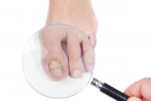 Слоится ноготь грибок. От чего появляется грибок на ногтях: причины, симптомы, лечение, профилактика