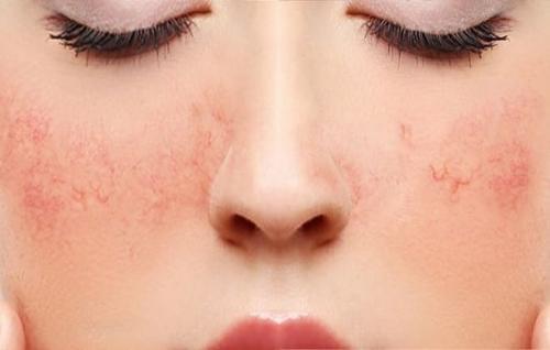 Удалить капилляры на лице. Как лечится купероз (капиллярная сетка) на лице и можно ли убрать (удалить) сосудистые звездочки с тела в домашних условиях