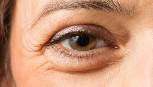 Как убрать возрастные мешки под глазами. Причины появления мешков под глазами
