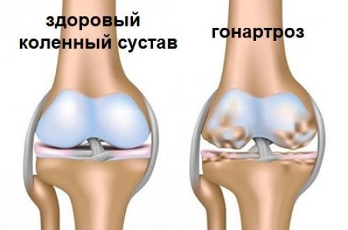 Инъекция гиалуроновой кислоты в суставы. Гиалуроновая кислота для суставов
