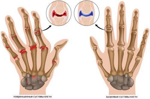 Растет косточка на фаланге пальца руки. Причины артритных шишек