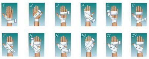 Как правильно забинтовать плечо эластичным. Общие правила наложения