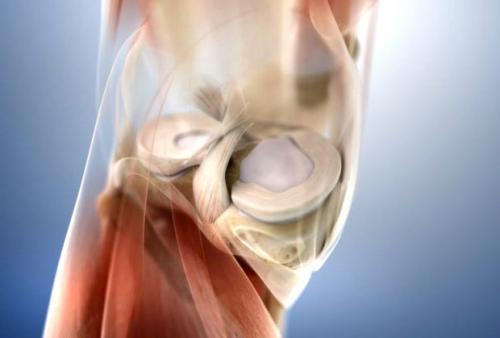 Восстановление после операции на мениске коленного сустава. Восстановление и реабилитация в случае удаления мениска