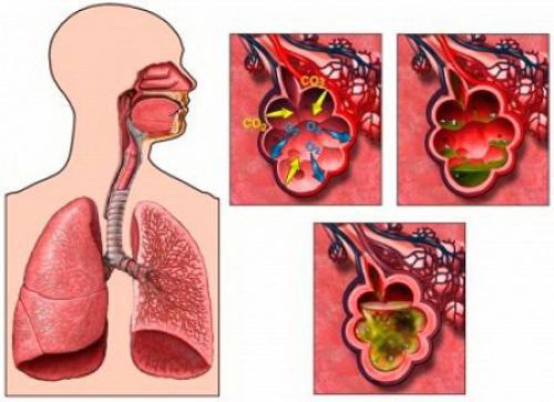 Симптомы пневмонии. Что такое пневмония?