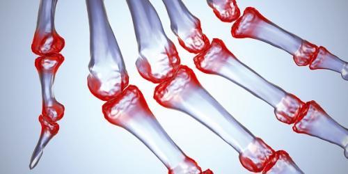 Ночью болят суставы пальцев. Разные виды артрита