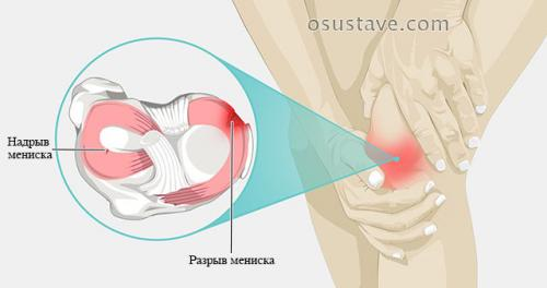 Разрыв мениска третьей степени лечение. Виды повреждений мениска коленного сустава: их обзор, степени, симптомы и лечение