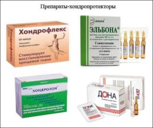 Таблетки для наращивания хрящевой ткани позвоночника. Медикаментозные средства для регенерации хрящей