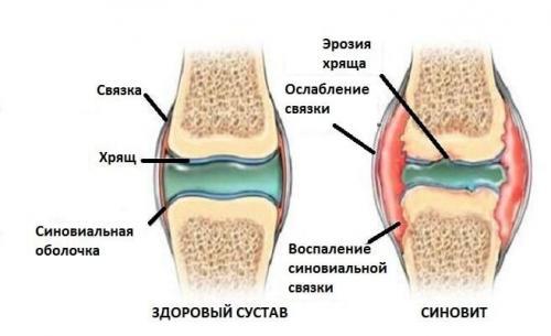 Уколы при синовите коленного сустава. Что Такое Синовит И Почему Он Может Возникнуть
