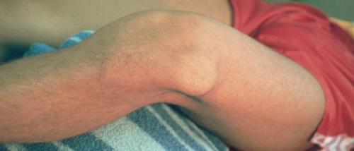 Как вправить мениск самостоятельно. Как вправить колено?
