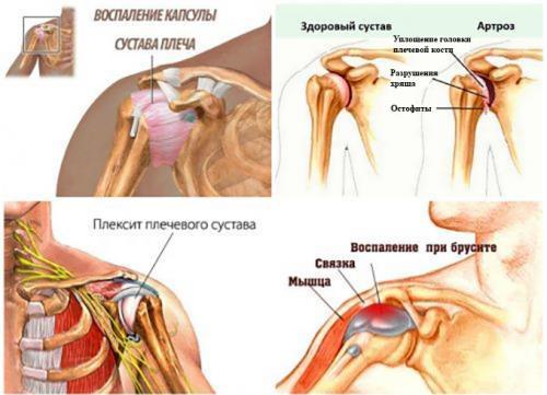 Боль и хруст в плечевом суставе лечение. Причины хруста при вращении руки