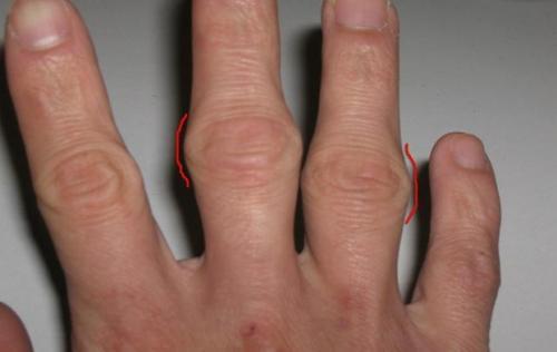 Косточки на пальцах рук лечение. Если на суставе пальца руки появилась шишка: причины и лечение