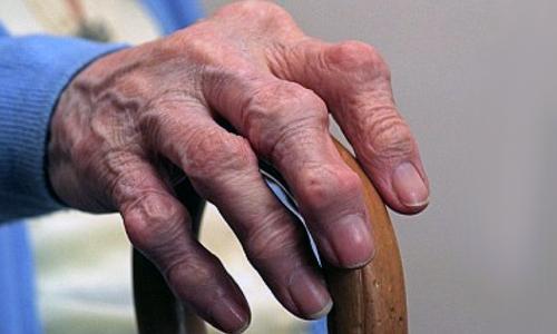 Нарост на фаланге пальца руки, что это. Шишка на среднем пальце руки