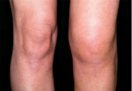 Застарелое повреждение мениска. Клинические проявления