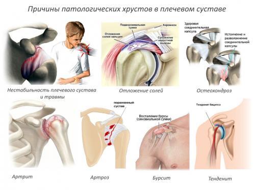 Что делать хрустят суставы в плечах. От чего появляется хруст в плече