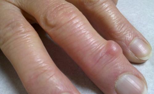 Шишки на пальце указательном пальце. Какие виды встречаются