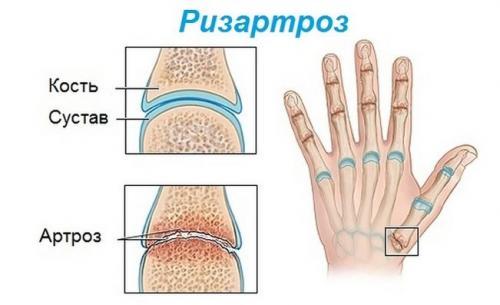 На суставах пальцев рук растут шишки. Симптомы