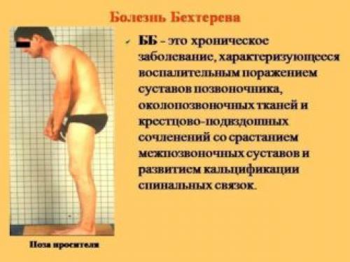 Воспаление подвздошной кости симптомы. Виды и формы заболевания