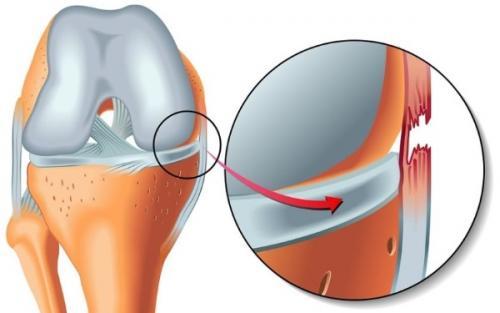 Хрустит колено. Заболевания и травмы, при которых хрустят суставы