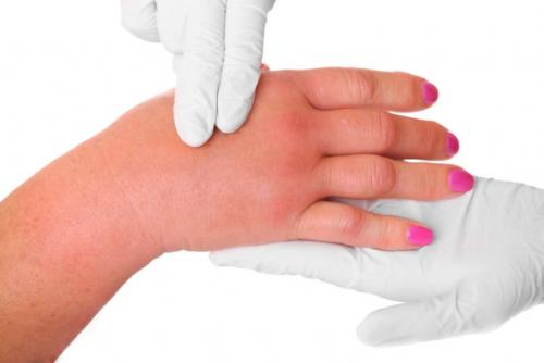 Опухли суставы пальцев рук лечение. Почему опухают пальцы рук: причины, диагностика и лечение отеков