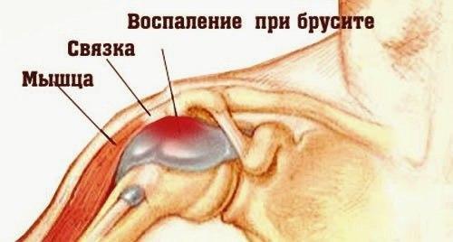 Операция плечевого сустава бурсит. Классификация и виды