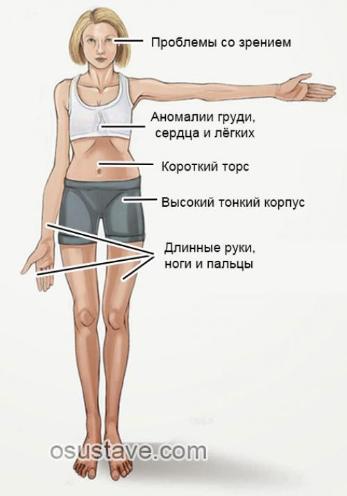 Разрыв заднего рога медиального мениска 3 степени коленного сустава лечение. Причины и механизмы разрыва мениска
