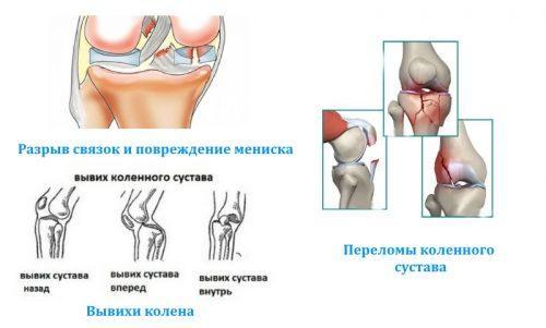 Причины артроза у детей. Причины детского остеоартроза