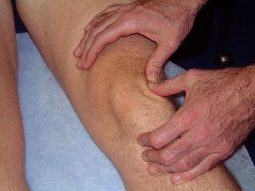 Опухло колено мазь. Природа появления отека при артрозе