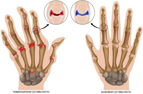 Большие косточки на руках. Причины артритных шишек