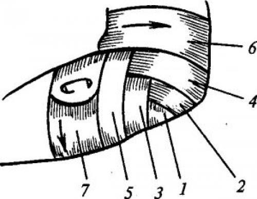 Сходящаяся и расходящаяся черепашья повязка. Черепичная (черепашья)