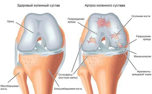 Для суставов и связок народные средства. Лечение суставов народными средствами в домашних условиях