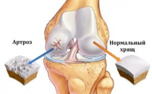 Гонартроз 3 степени коленного сустава инвалидность. Характерные признаки