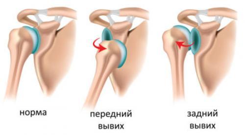 Как восстановить плечо после вывиха. Особенности восстановления плечевого сустава после вывиха, упражнения для укрепления мышц плеча, цели физиотерапии и особенности реабилитации