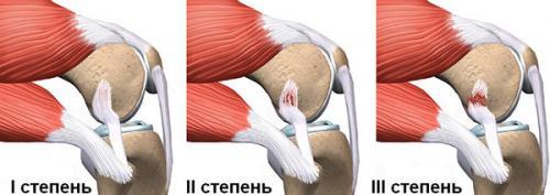 Растяжение связок колена сроки восстановления. Характер разрыва истепени