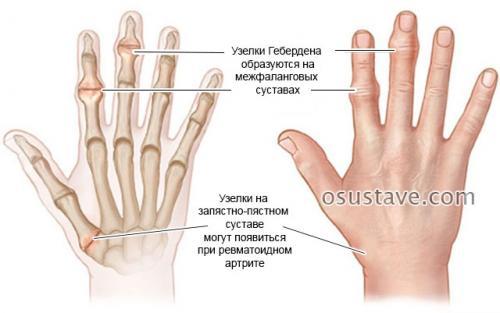 На фалангах пальцев наросты. Шишки на суставах пальцев рук: причины, диагностика и лечение